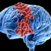 10 Facts about Brain Cancer