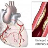 10 Facts about Coronary Heart Disease