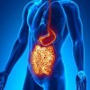 10 Facts about Crohn's Disease
