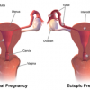 10 Facts about Ectopic Pregnancy