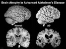 10 Facts about Alzheimer's disease