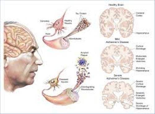 Alzheimer's Disease Diagnosis