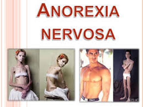 Anorexia Nervosa Body