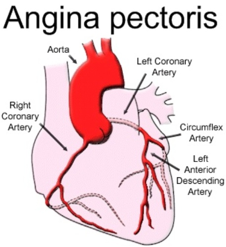 Facts about Angina Pectoris