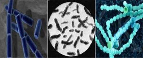Archaebacteria Comparison