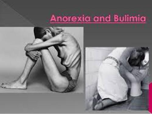 Facts about Anorexia and Bulimia