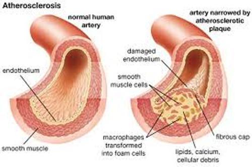 Atherosclerosis Pic