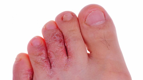 Athlete's Foot Causes