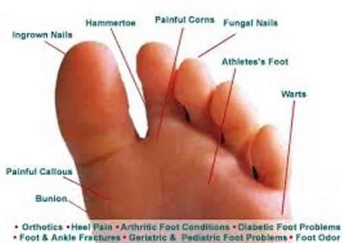 Athlete's Foot Facts