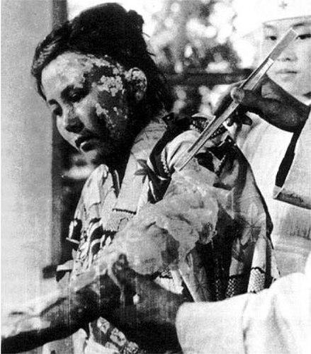 Atomic Bomb in Hiroshima and Nagasaki Victims