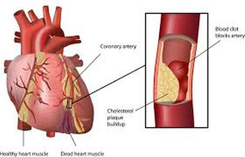 Facts about Atherosclerosis
