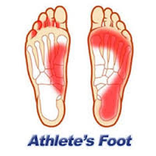 Facts about Athlete's Foot