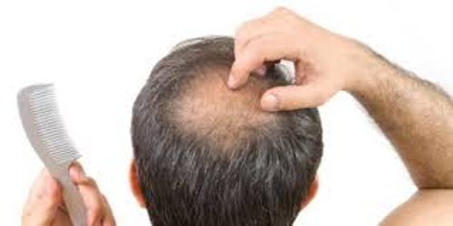 Baldness Male
