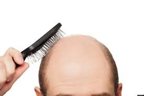 Baldness Patterns