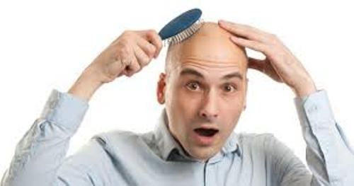 Baldness facts
