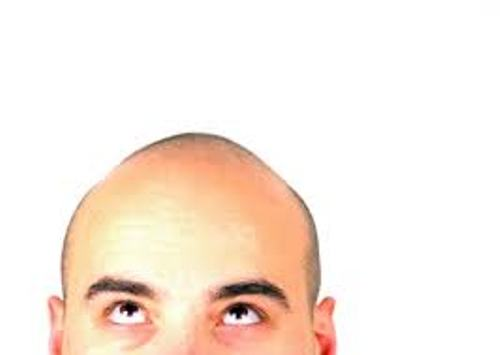 Facts about Baldness
