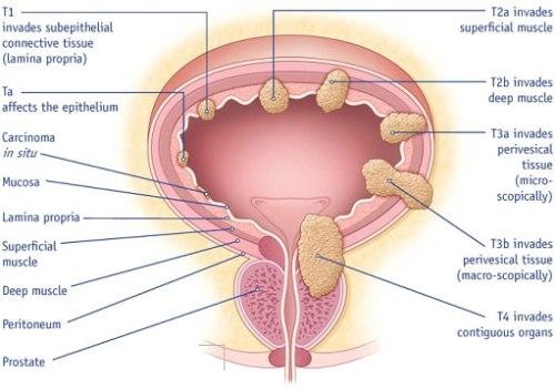 Bladder Cancer Facts