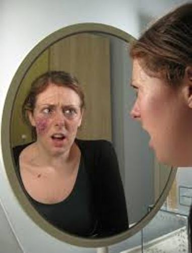 Body dysmorphic disorder case study