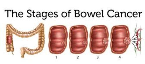 Bowel Cancer Image