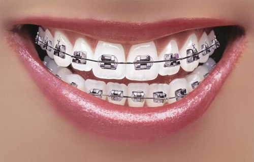 Braces Facts