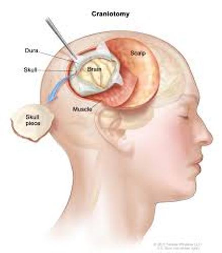 Brain Cancer Images