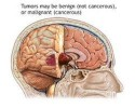 10 Facts about Brain Tumors