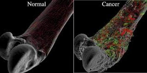 Facts about Bone Cancer