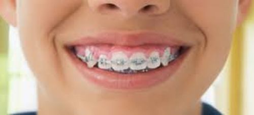 Facts about Braces