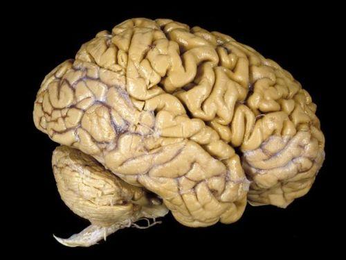 Real Brain