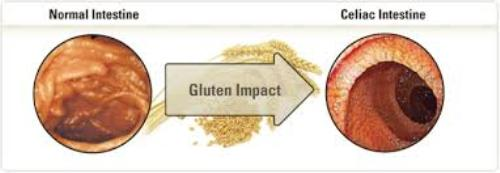 Celiac Disease facts