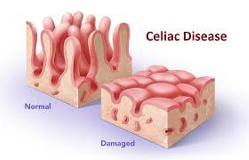 Celiac Disease