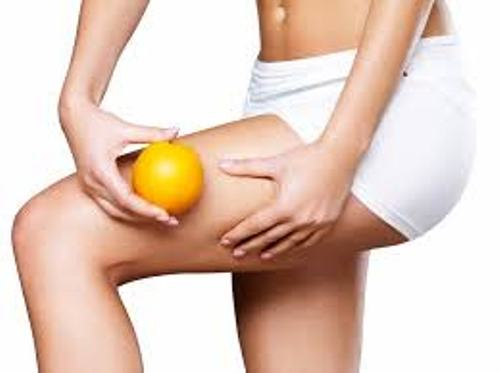 Cellulite Facts