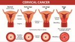 10 Facts about Cervical Cancer