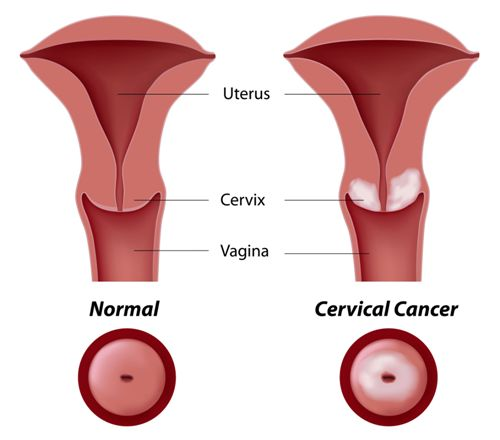 Cervical Cancer Picture