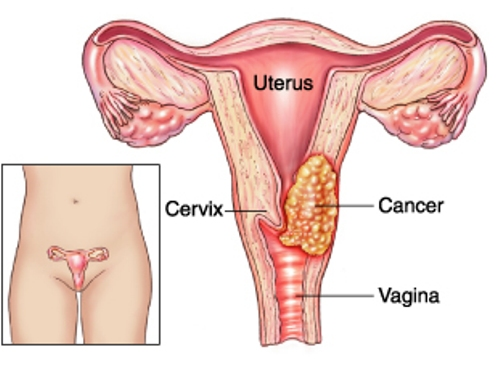 Facts about Cervical Cancer
