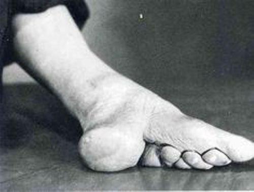 Chinese Foot Binding Image