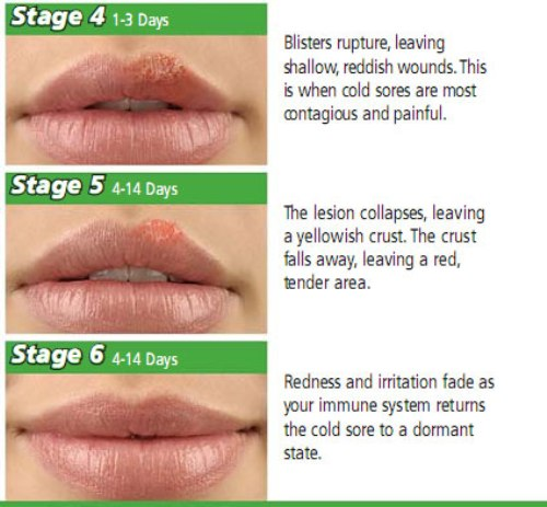 Cold Sores Stages