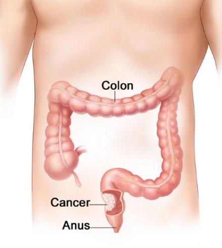 Colon Cancer Image