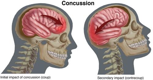 Concussions Image