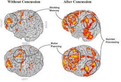 Concussions Pic