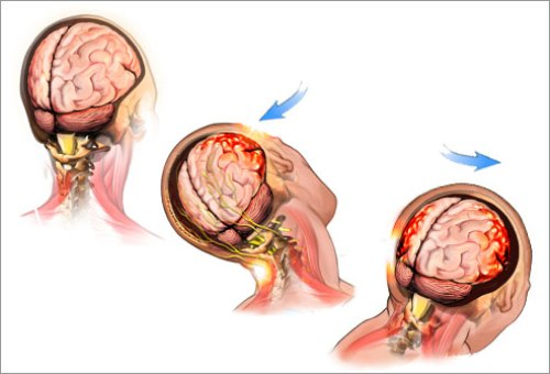 Concussions Pictures