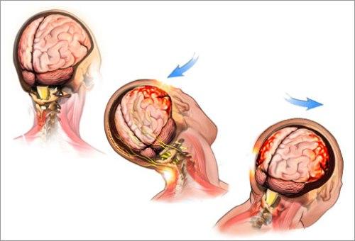 Concussions Pictures