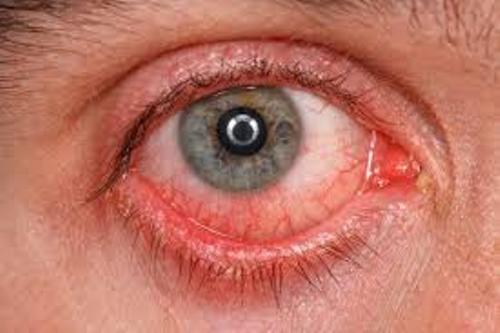Conjunctivitis Facts