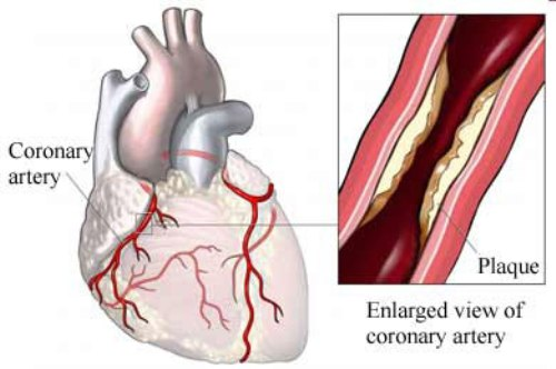 Coronary Heart Disease Facts