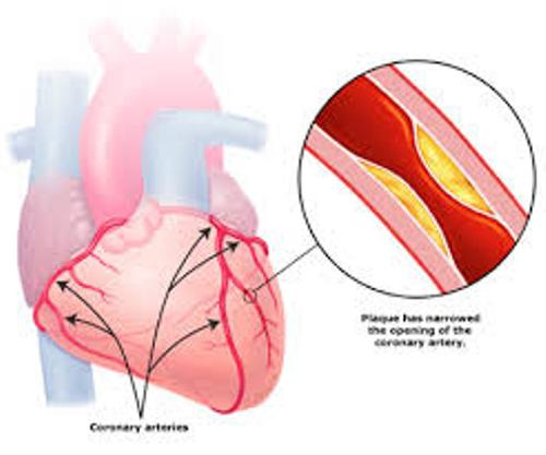 Coronary Heart Disease Pic