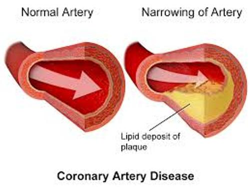 Coronary Heart Diseases