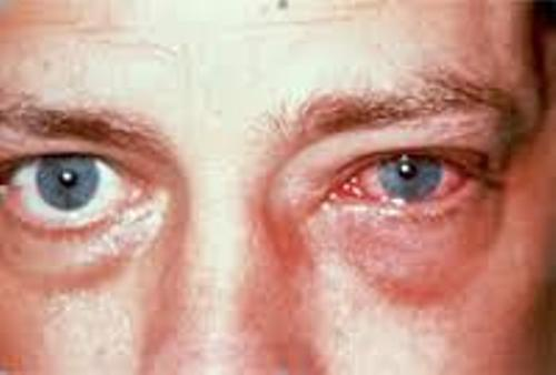Facts about Conjunctivitis