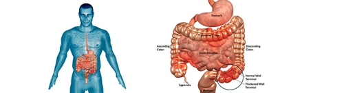 Crohn's Disease Image