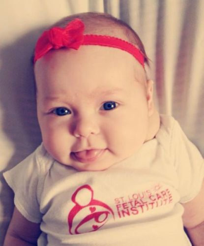 Cystic Hygroma Baby
