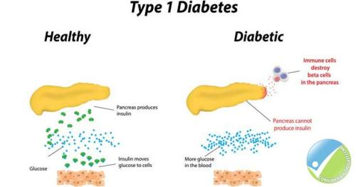 Diabetes Type 1 Image